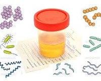 Бессимптомная бактериурия у беременных