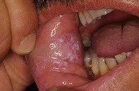 Стандарт лечения кандидоза полости рта thumbnail