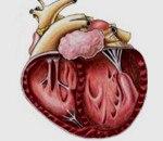 Аритмогенная дисплазия правого желудочка код мкб thumbnail