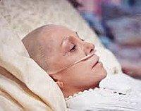 Распад опухоли кожи код по мкб 10 thumbnail