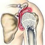 Остеоартроз плечевого сустава код мкб thumbnail