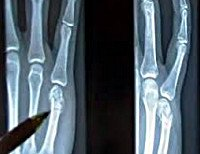Закрытый перелом пястной кости код мкб