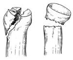 Перелом головки лучевой кости