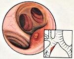 Туберкулез бронхов код по мкб thumbnail