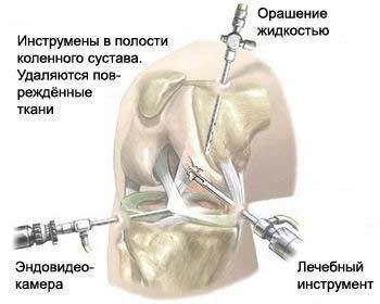Операция на суставе: удаление поврежденной синовиальной оболочки