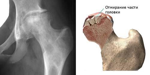 Рентгенограмма при асептическом некрозе бедренной кости