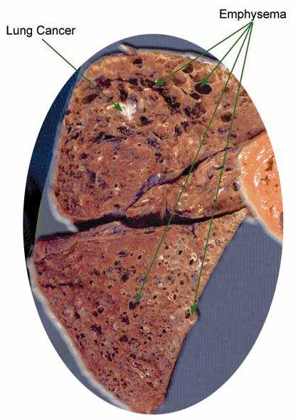Эмфизема легких (макропрепарат)