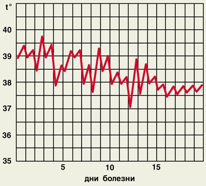 Неправильный тип температурной кривой