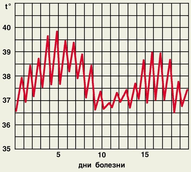 Волнообразный тип температурной кривой