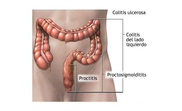 Повреждение толстого кишечника на различных уровнях