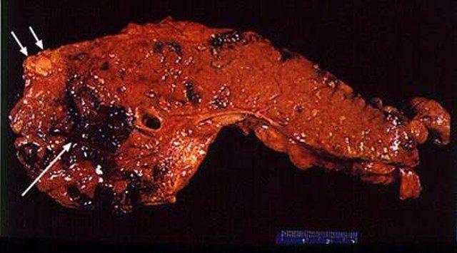 Макропрепарат поджелудочной железы при панкреонекрозе
