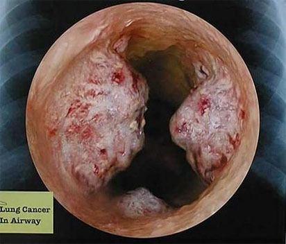 Рак бронхов при бронхоскопии