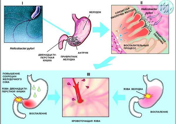 Патогенез язвенной болезни желудка