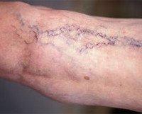 Варикозная болезнь (варикоз)