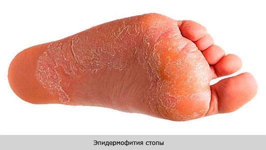 Эпидермофития стоп