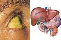 B15-B19 Вирусный гепатит