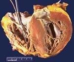 Дилатационная кардиомиопатия мкб