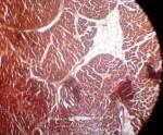 Постинфарктный кардиосклероз мкб 10 код ⋆ Лечение Сердца