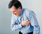 Ибс стенокардия напряжения мкб 10