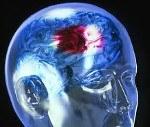 I63.9 Инфаркт мозга неуточненный