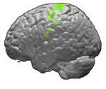 Локализованная фокальная парциальная симптоматическая эпилепсия
