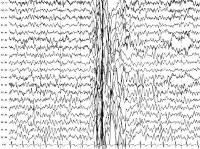 Миоклоническая эпилепсия