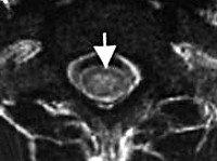 G37.3 Острый поперечный миелит при демиелинизирующей болезни центральной нервной системы