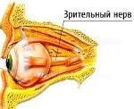 H48.1 Ретробульбарный неврит при болезнях, классифицированных в других рубриках