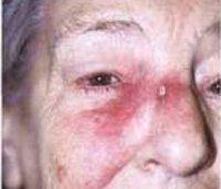 C43-C44 Меланома и другие злокачественные новообразования кожи