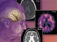 F01 Сосудистая деменция