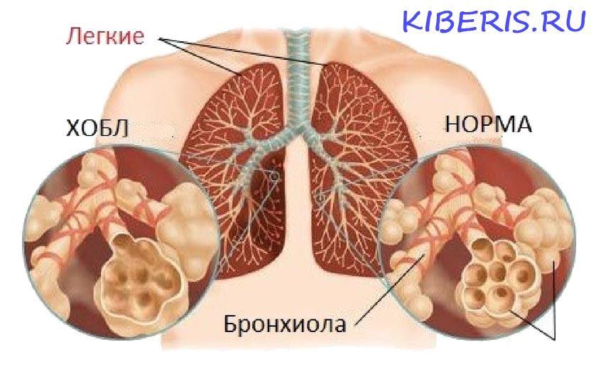 Хронические обструктивные заболевания легких