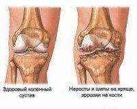 M17 Гонартроз [артроз коленного сустава]