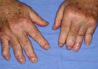 Симптомы и виды псориаза