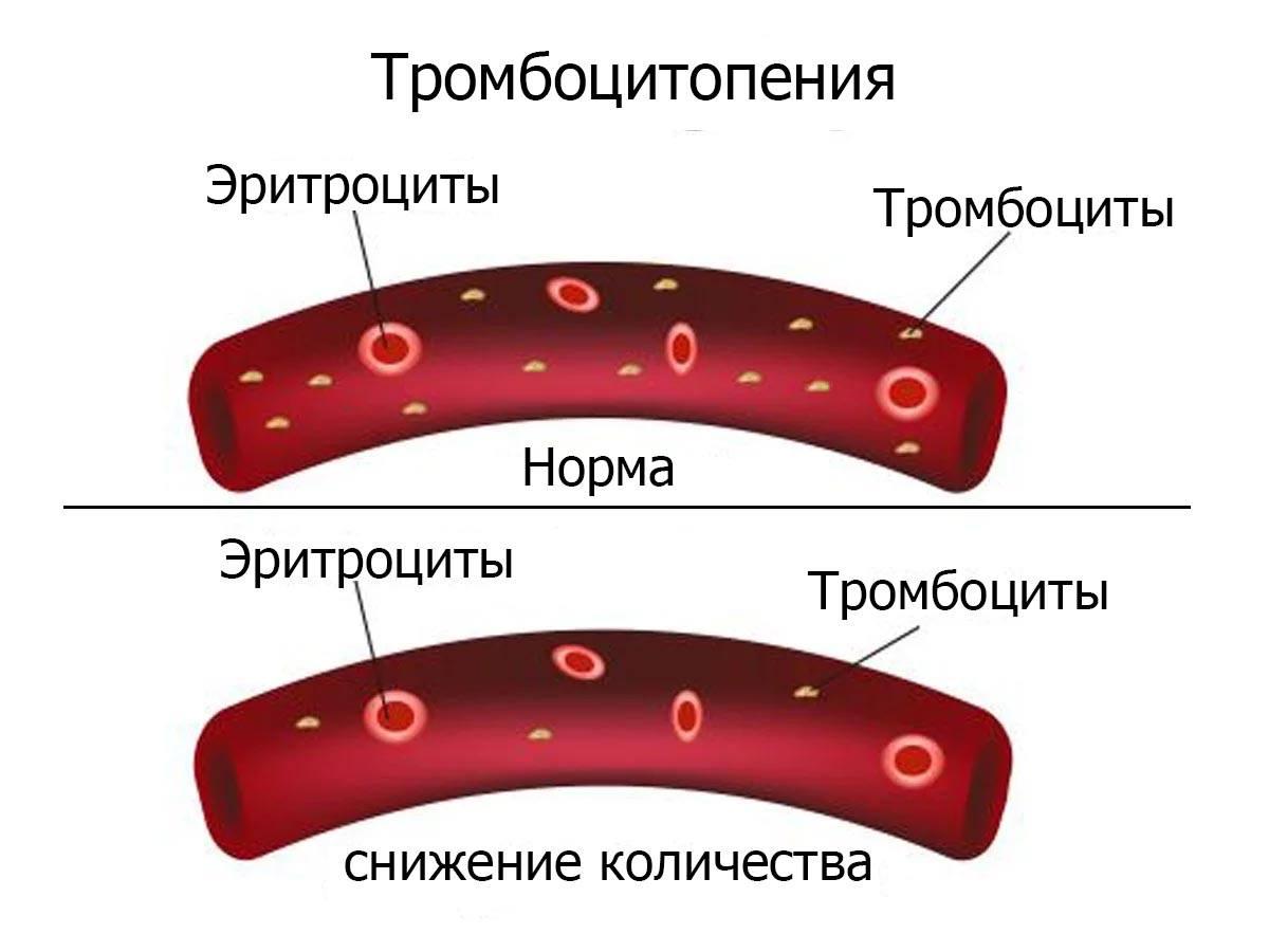 Препараты при тромбоцитопении