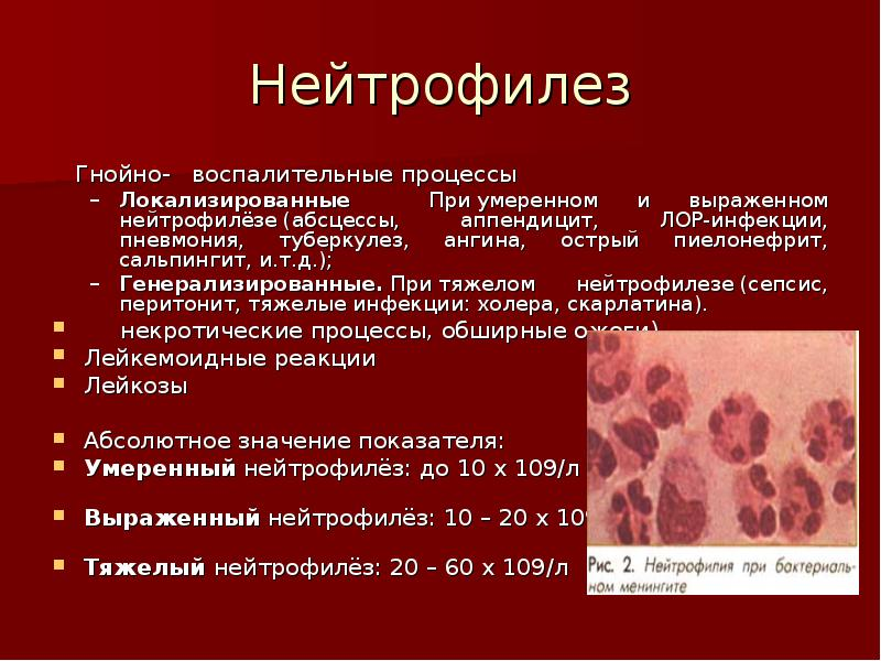 Нейтрофилёз