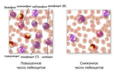 32472 - Koncept limfocitoze uzroka i vrste simptomatološke dijagnostičke terapije