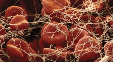 Как фибриноген обозначается в анализах