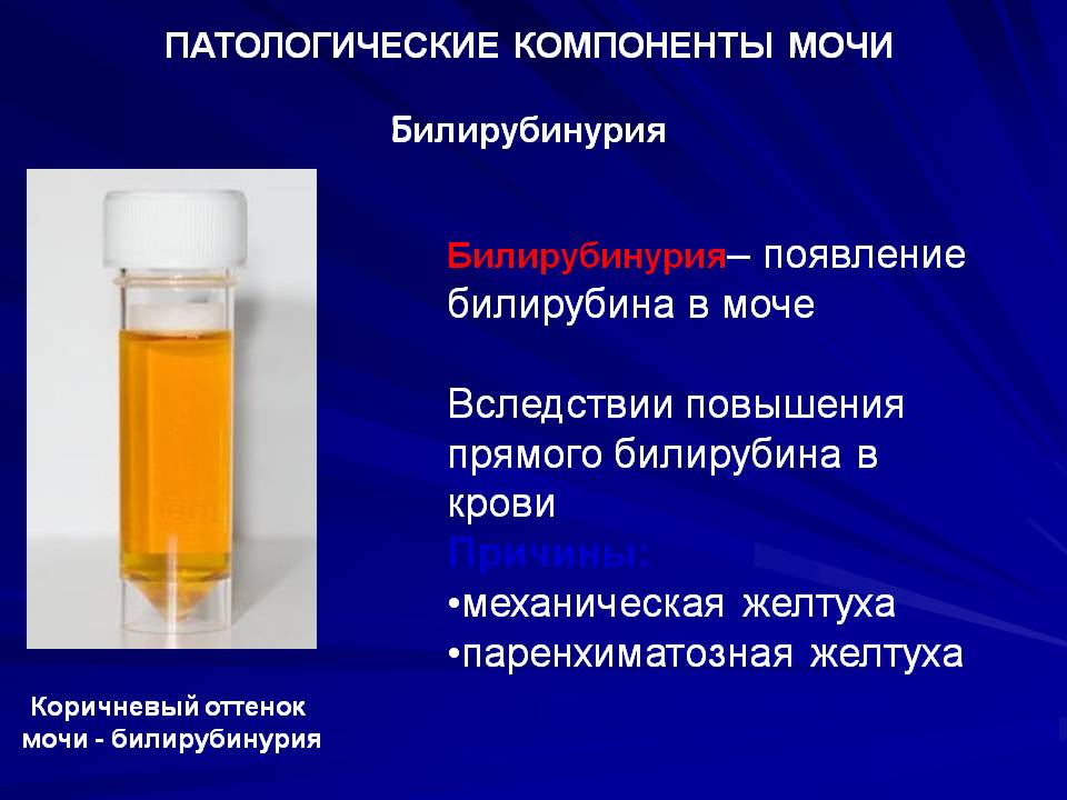 Билирубинурия