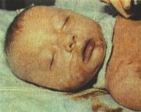 P35.3 Врожденный вирусный гепатит