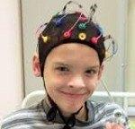 Симптоматическая фокальная эпилепсия код по мкб 10