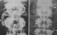 Серонегативные спондилоартриты