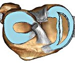 S83.2 Разрыв мениска свежий