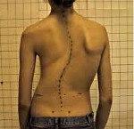 МКБ-10 Сколиоз неуточненный - лечение, клиника, признаки по международной классификация болезней