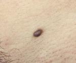 Эндометриоз кожи