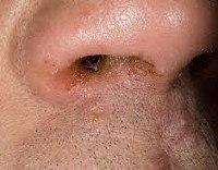 Атопический дерматит код по мкб
