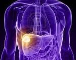 Доброкачественные опухоли печени
