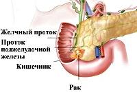 C25.0 Злокачественное новообразование головки поджелудочной железы