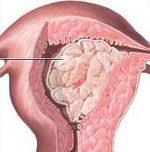 Рак эндометрия - описание, лечение.