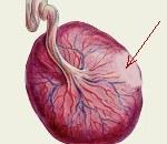Инфаркт плаценты