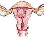 Плацентарный полип